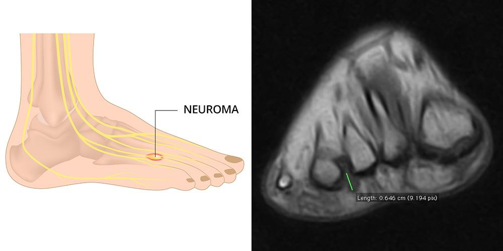 Neuroma di Morton