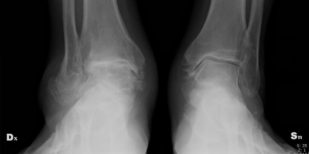 Artrosi di caviglia - Dott Roberto Pelucchi