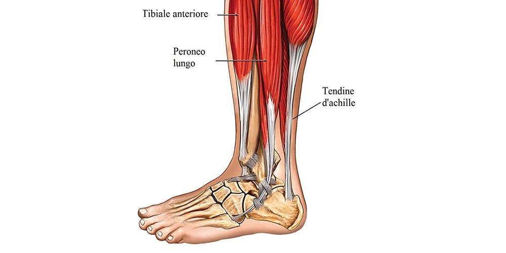 Tendinite dell'Achille - Dott Roberto Pelucchi